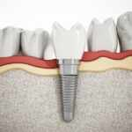 6 Reasons to Choose Implants Over Other Dental Solutions