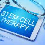 5 Benefits of Stem Cell Therapy