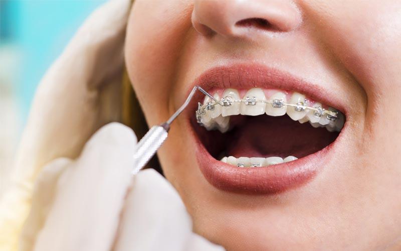 braces in austin